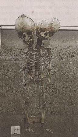 Скелет двухголового ребёнка в Музее Мюттера